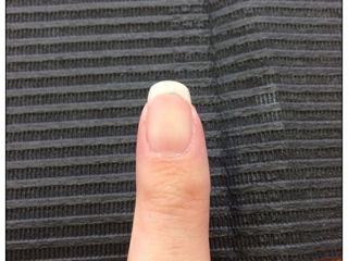 正面から見た爪