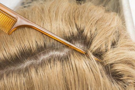 金髪の方の頭皮