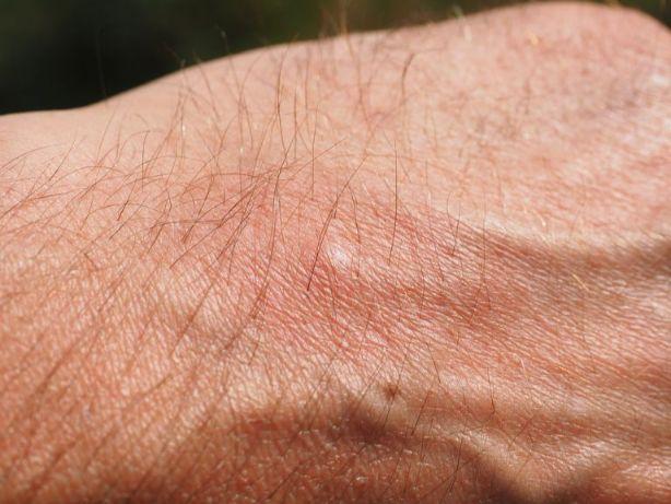 虫に刺された手