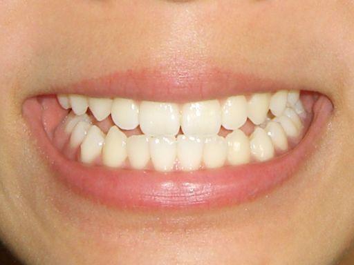 歯並びの綺麗な白い歯