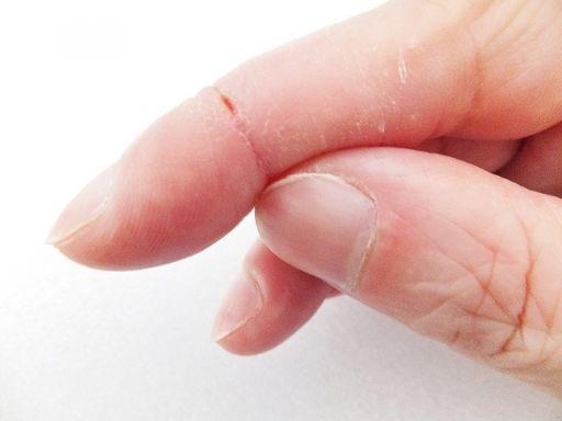 ひび割れている指