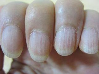 ネイルをはがした直後の爪