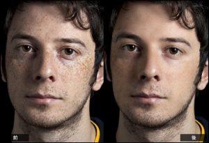 男性の肌比較